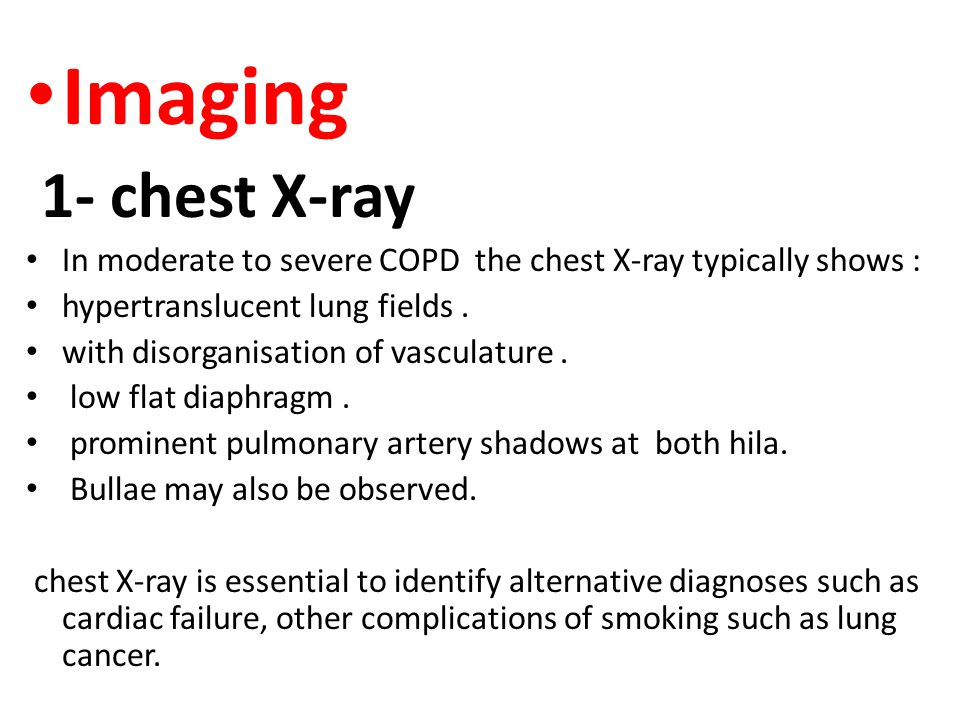 Imaging 1- chest X-ray. In moderate to severe COPD the chest X-ray typically shows : hypertranslucent lung fields .