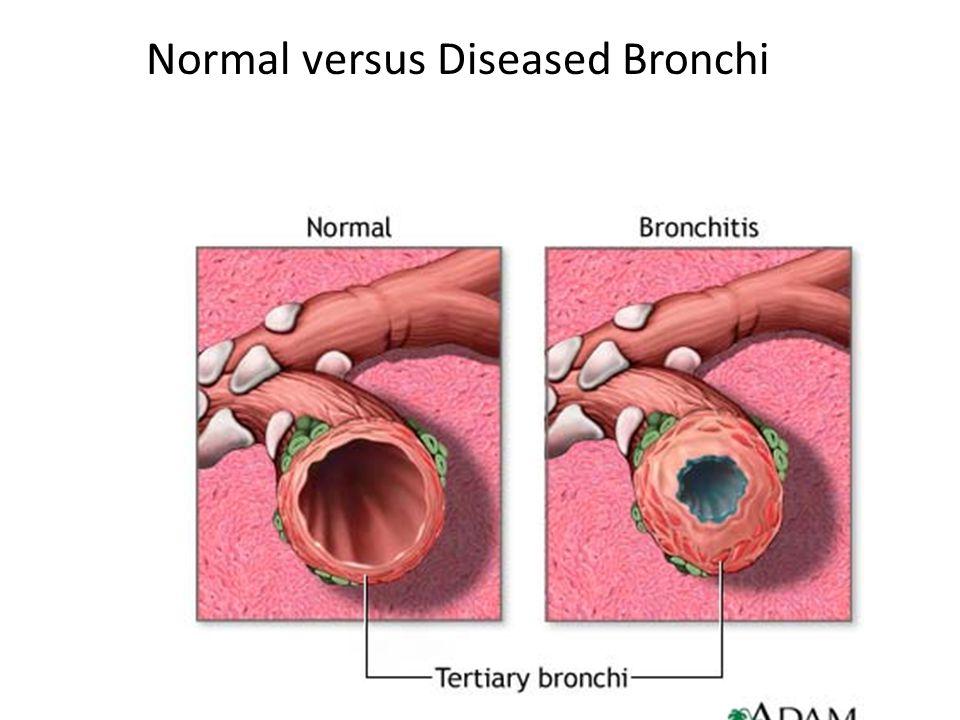Normal versus Diseased Bronchi