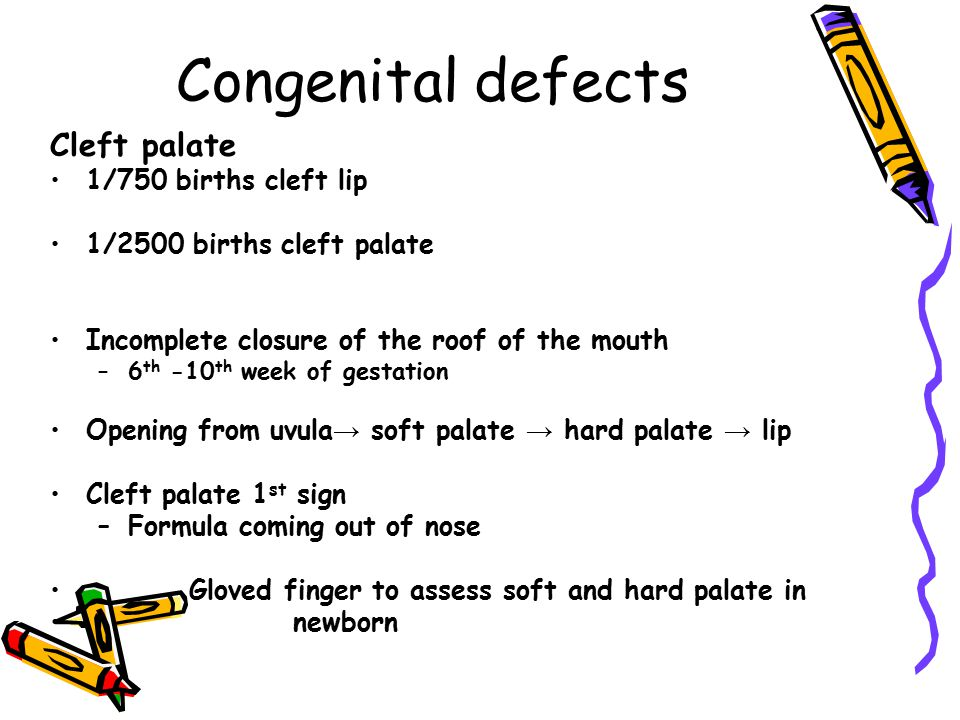 Congenital defects Cleft palate 1/750 births cleft lip