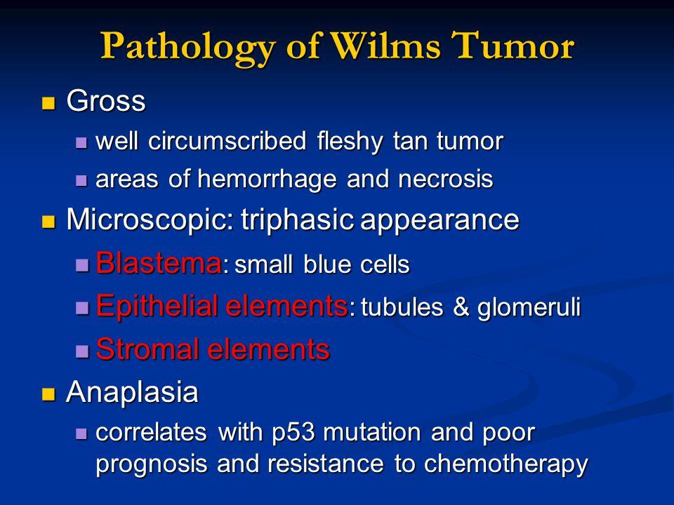 Pathology of Wilms Tumor