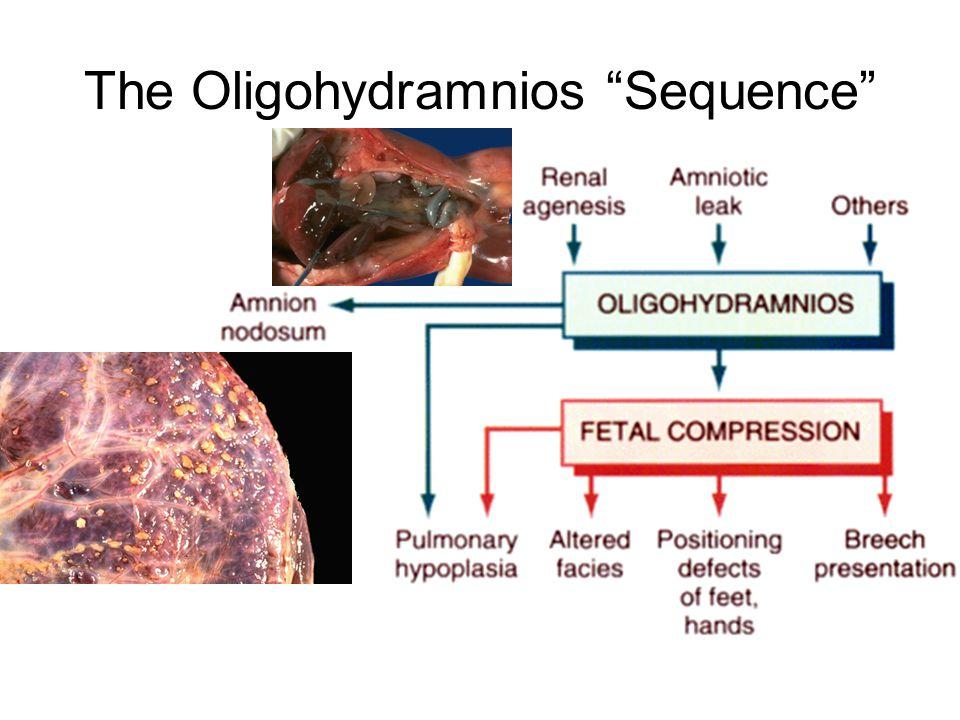 The Oligohydramnios Sequence