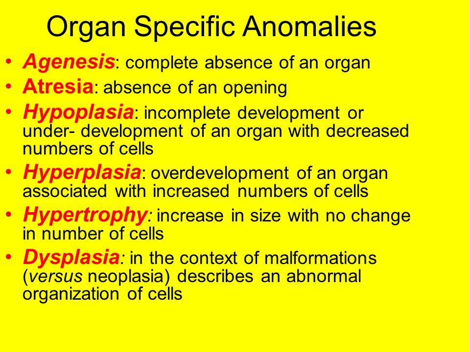Organ Specific Anomalies