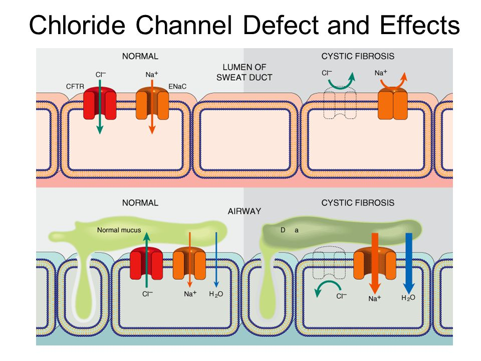 Chloride Channel Defect and Effects