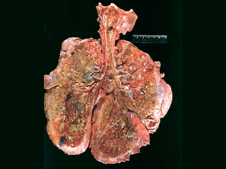 Figure 10-23 Lungs of a patient dying of cystic fibrosis
