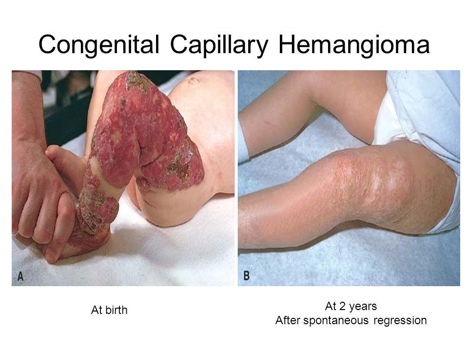 Congenital Capillary Hemangioma