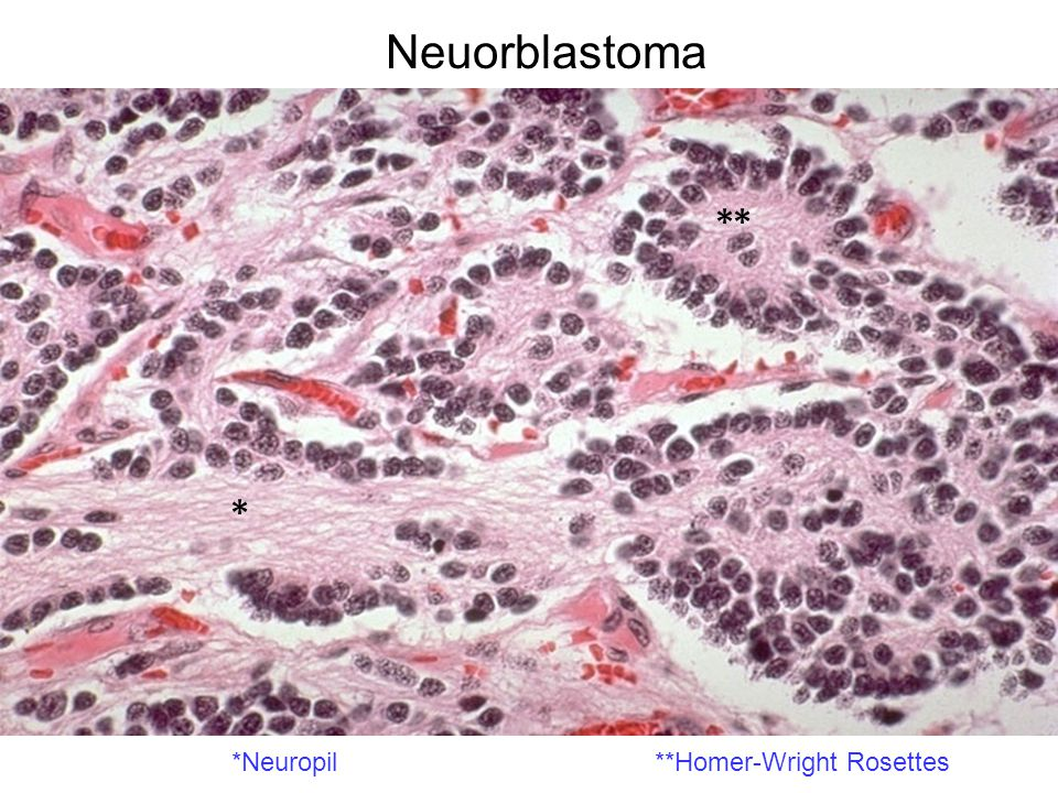 Neuorblastoma ** * *Neuropil **Homer-Wright Rosettes