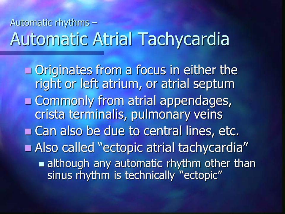 Automatic rhythms – Automatic Atrial Tachycardia