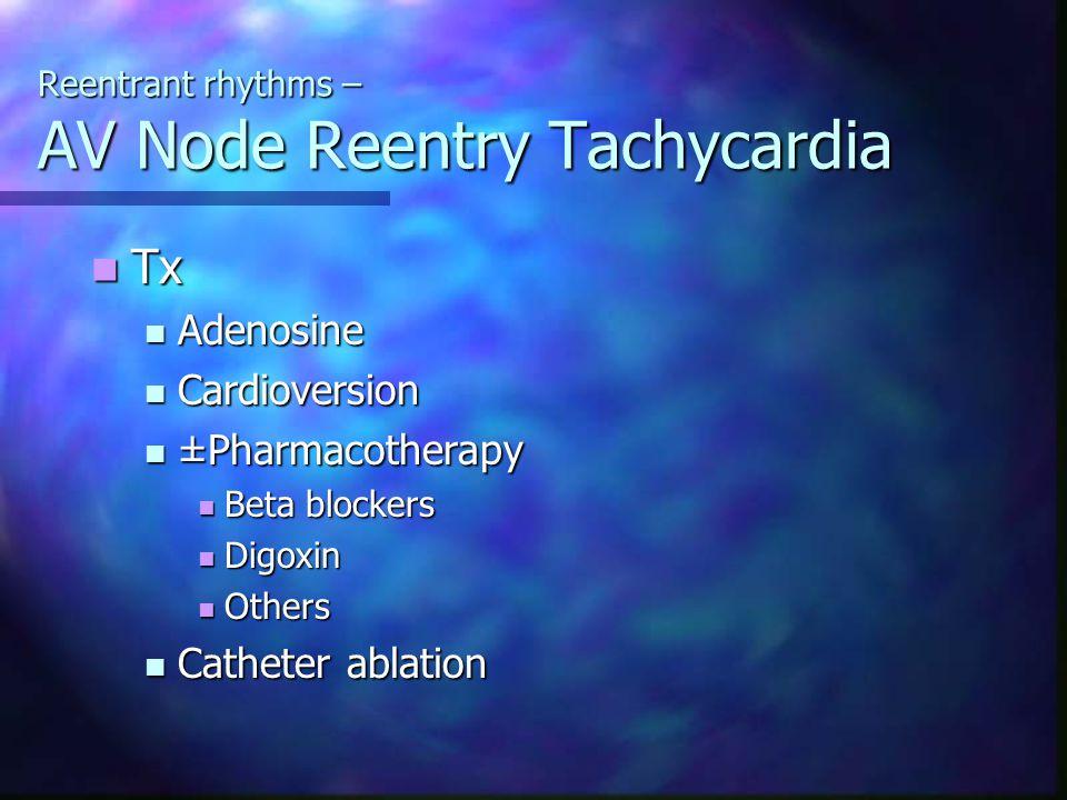 Reentrant rhythms – AV Node Reentry Tachycardia