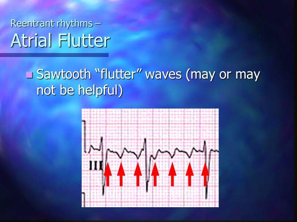 Reentrant rhythms – Atrial Flutter