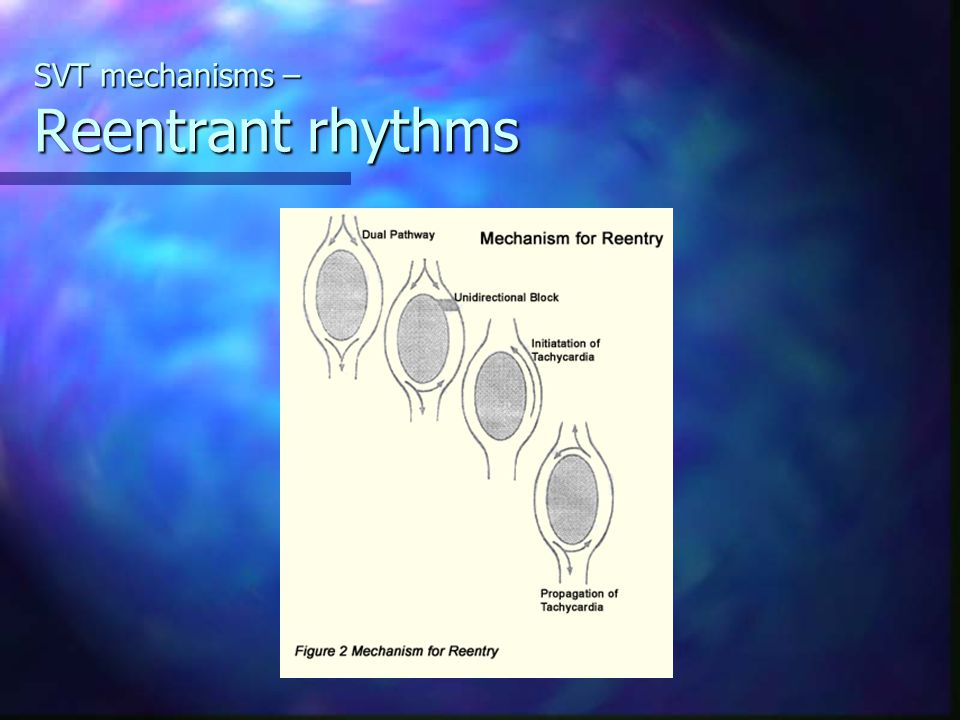SVT mechanisms – Reentrant rhythms