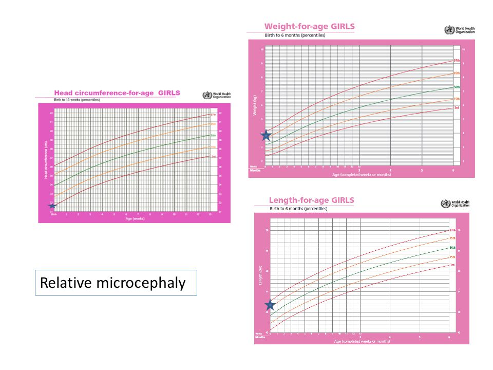 Relative microcephaly