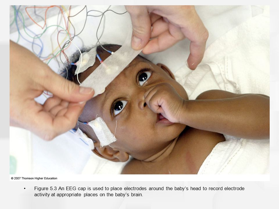 Figure 5.3 An EEG cap is used to place electrodes around the baby's head to record electrode activity at appropriate places on the baby's brain.
