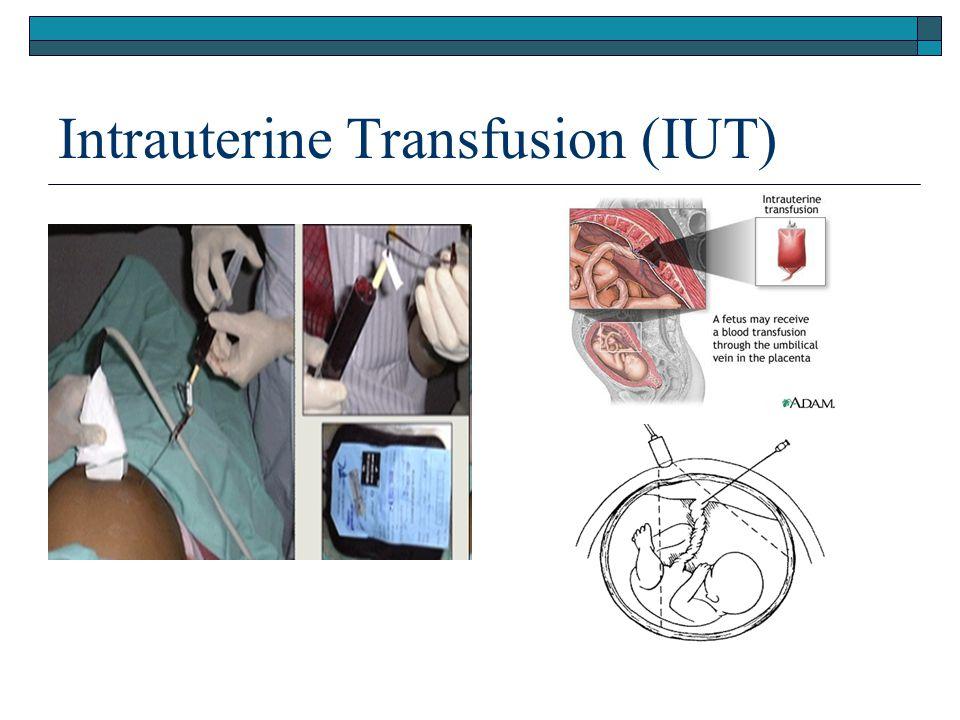 Intrauterine Transfusion (IUT)
