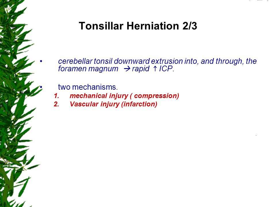 Tonsillar Herniation 2/3
