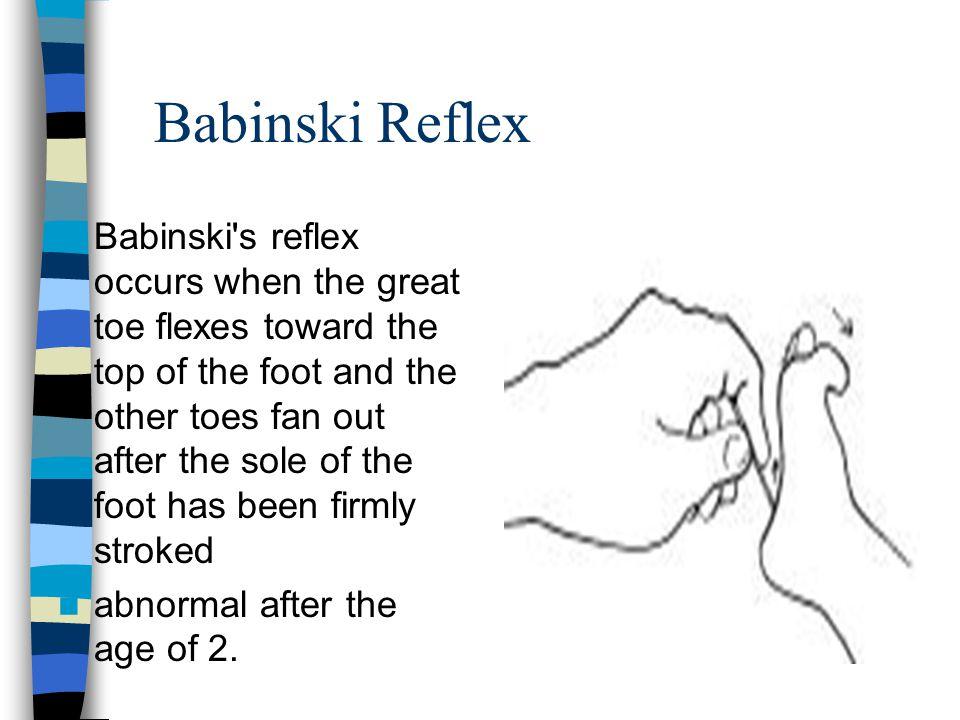 Babinski Reflex