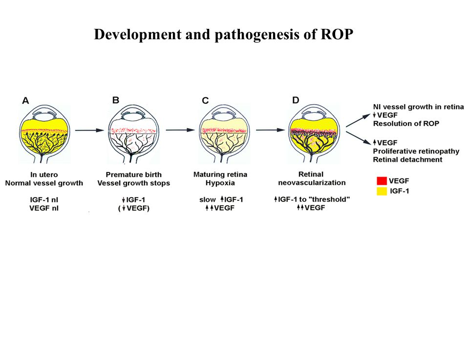 Development and pathogenesis of ROP