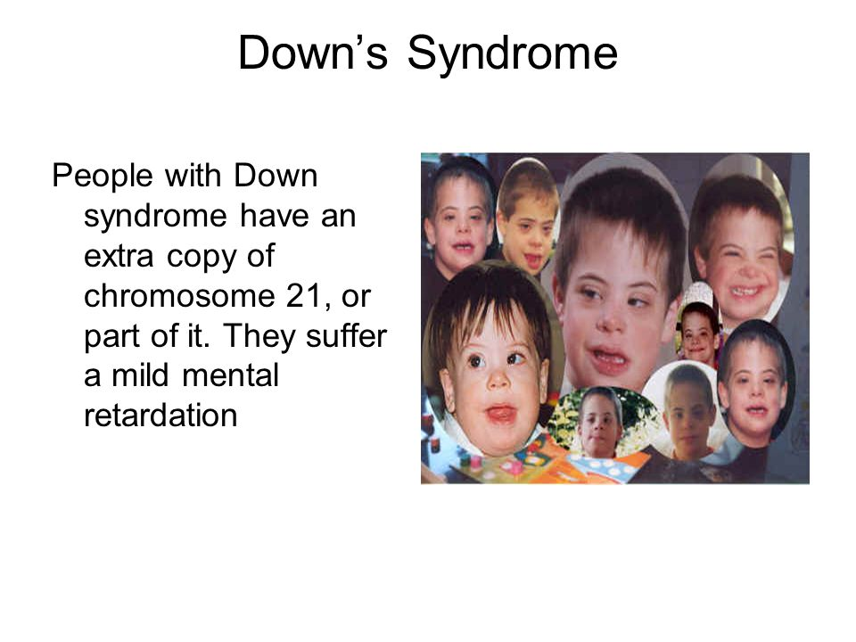 Down's Syndrome People with Down syndrome have an extra copy of chromosome 21, or part of it.