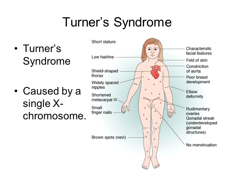 Turner's Syndrome Turner's Syndrome Caused by a single X-chromosome.