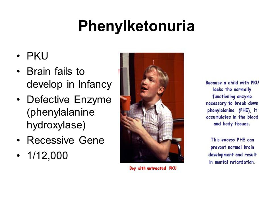 Phenylketonuria PKU Brain fails to develop in Infancy