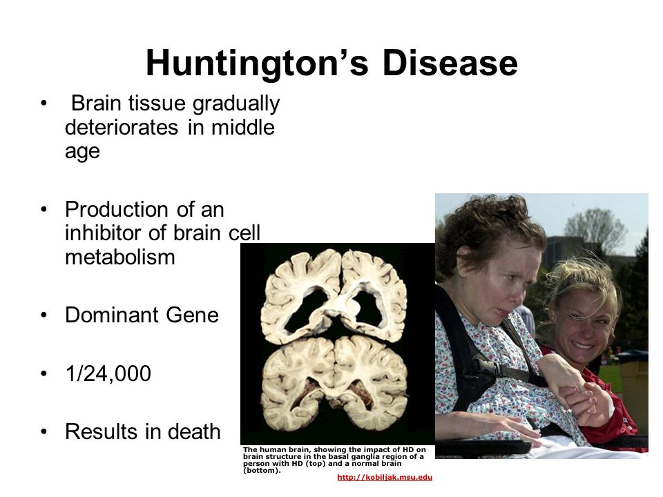 Huntington's Disease Brain tissue gradually deteriorates in middle age