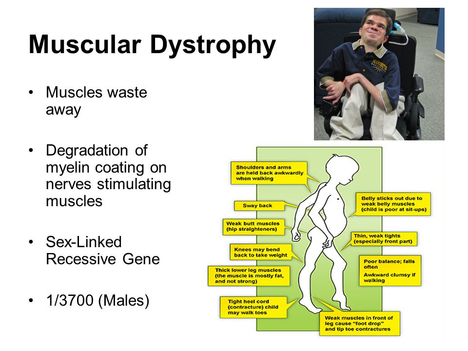 Muscular Dystrophy Muscles waste away
