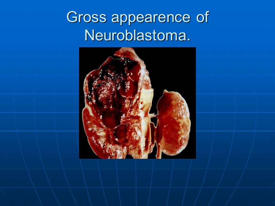 Gross appearence of Neuroblastoma.