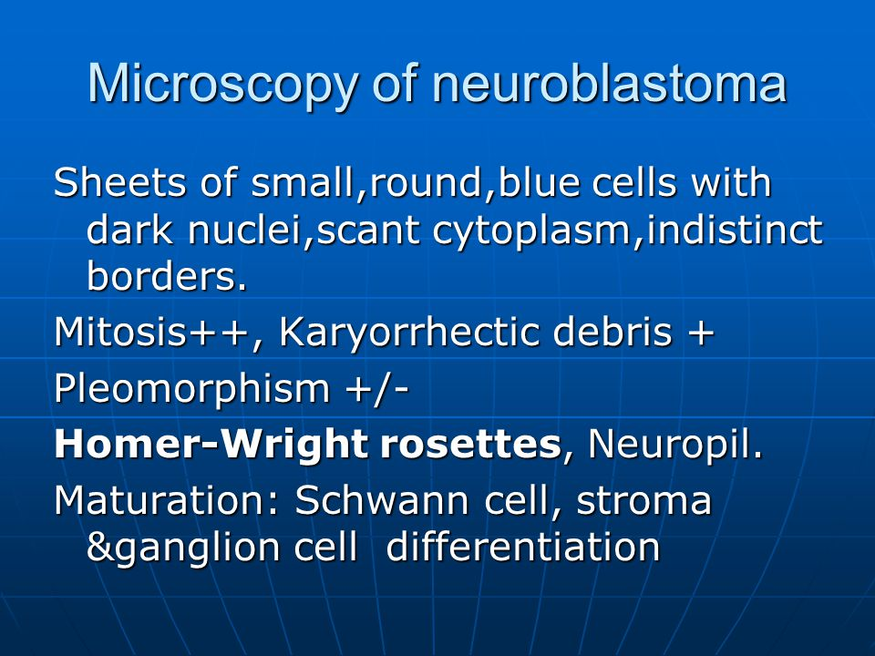 Microscopy of neuroblastoma