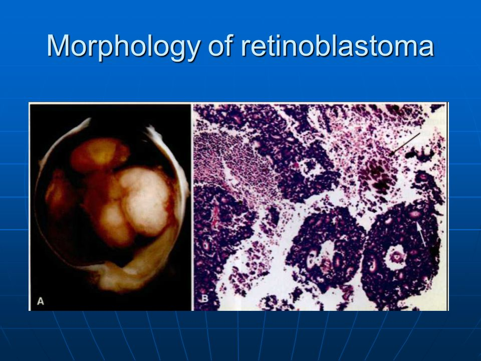 Morphology of retinoblastoma