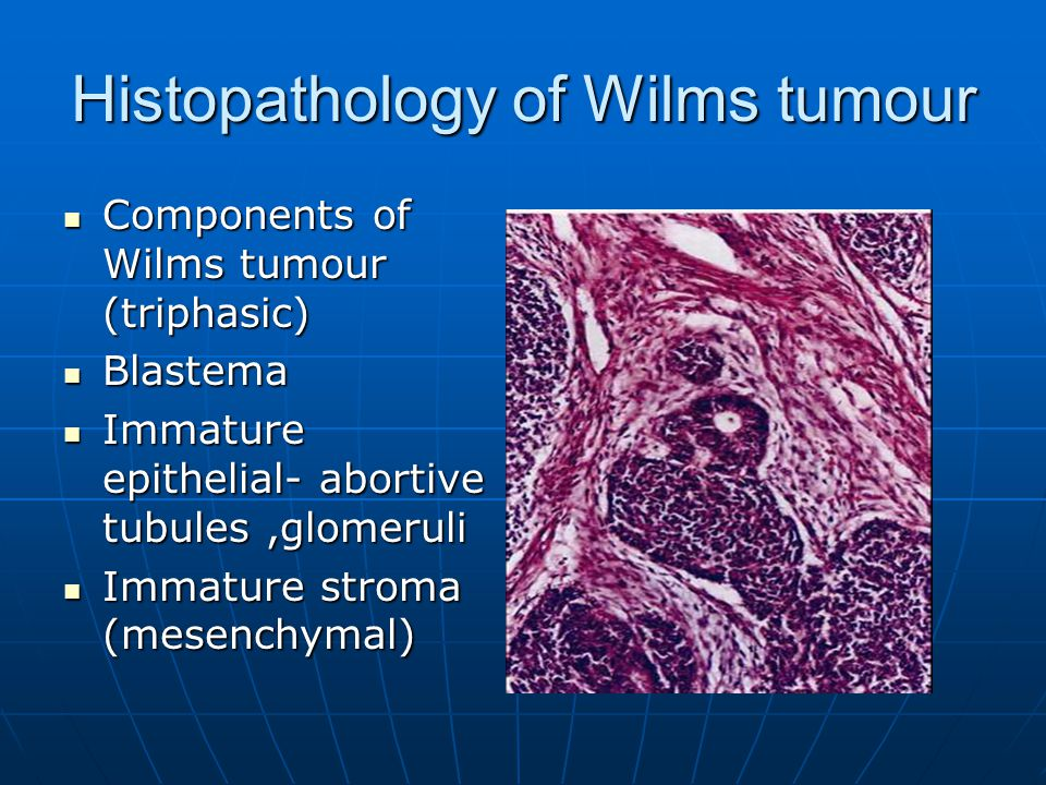 Histopathology of Wilms tumour