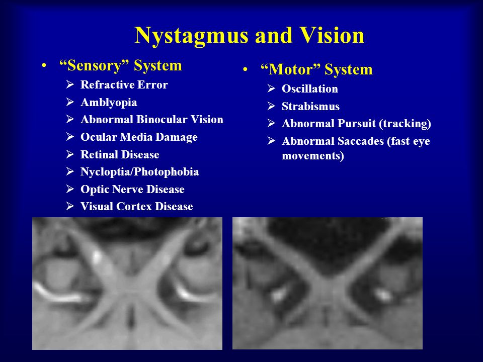 Nystagmus and Vision Sensory System Motor System Refractive Error