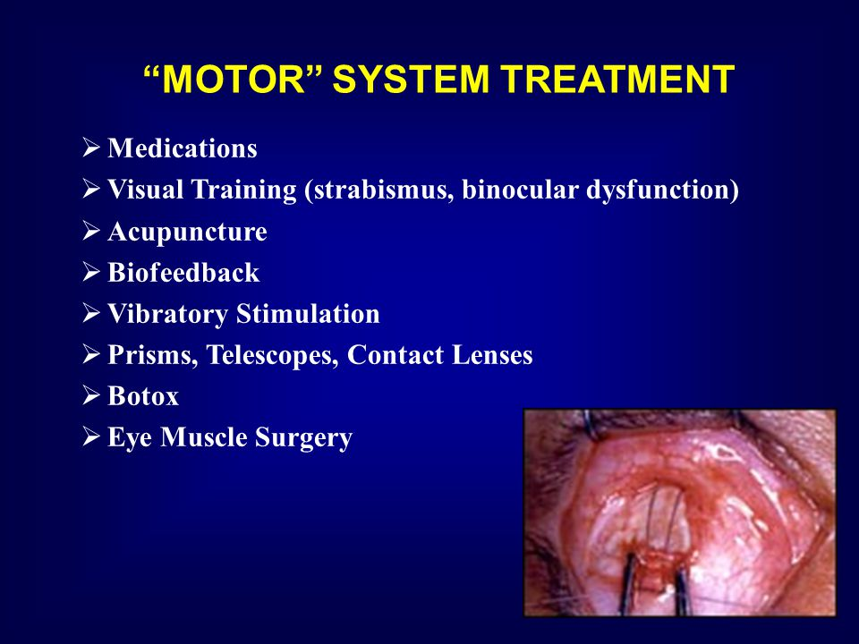 MOTOR SYSTEM TREATMENT