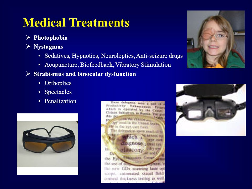 Medical Treatments Photophobia Nystagmus
