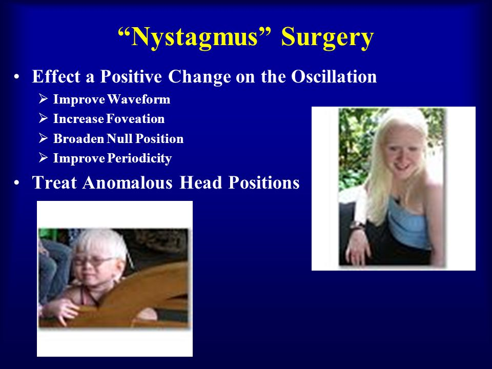 Nystagmus Surgery Effect a Positive Change on the Oscillation