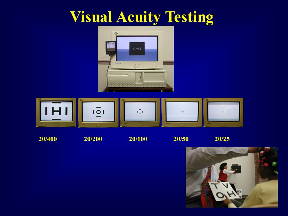 Visual Acuity Testing 20/400 20/200 20/100 20/50 20/25