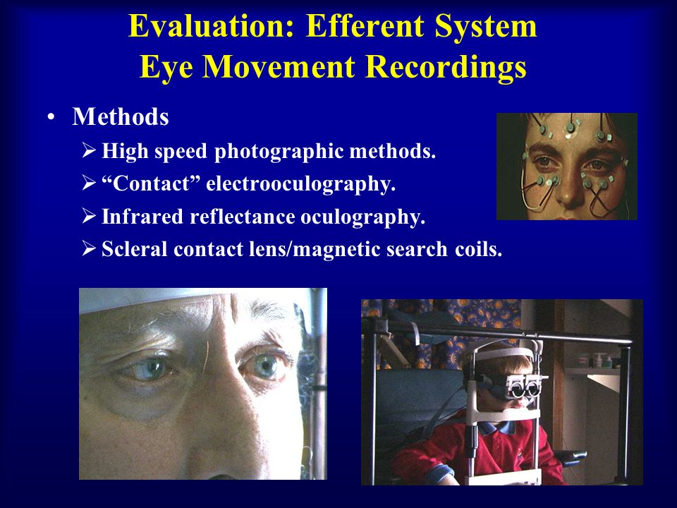 Evaluation: Efferent System Eye Movement Recordings