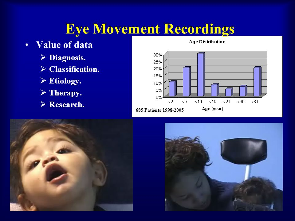 Eye Movement Recordings