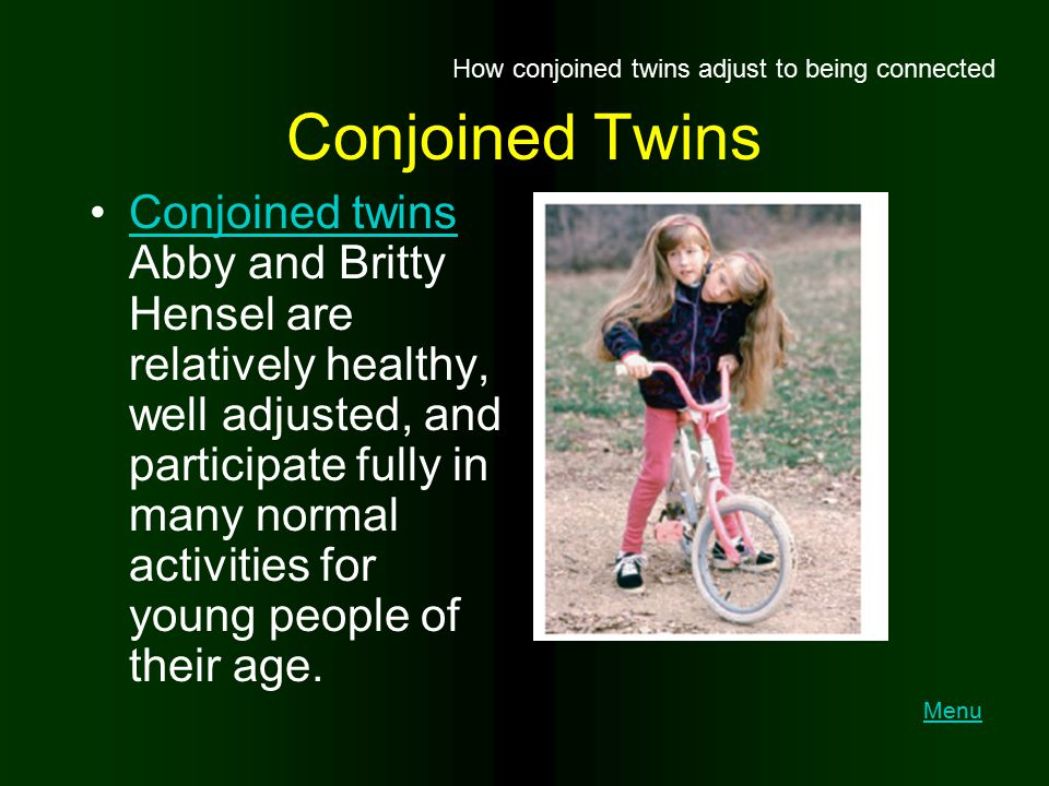 How conjoined twins adjust to being connected