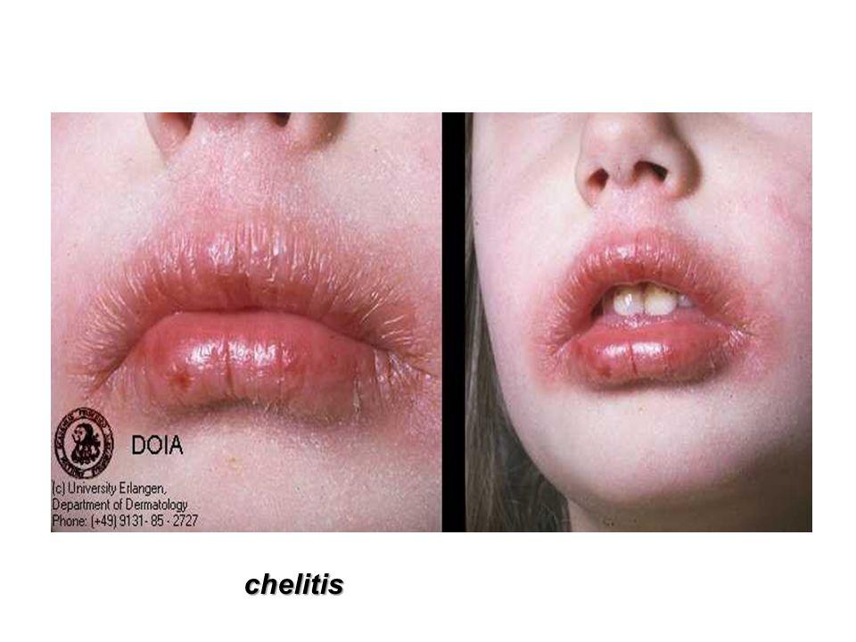 chelitis