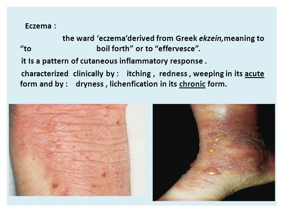 Eczema : the ward 'eczema'derived from Greek ekzein,meaning to to boil forth or to effervesce .
