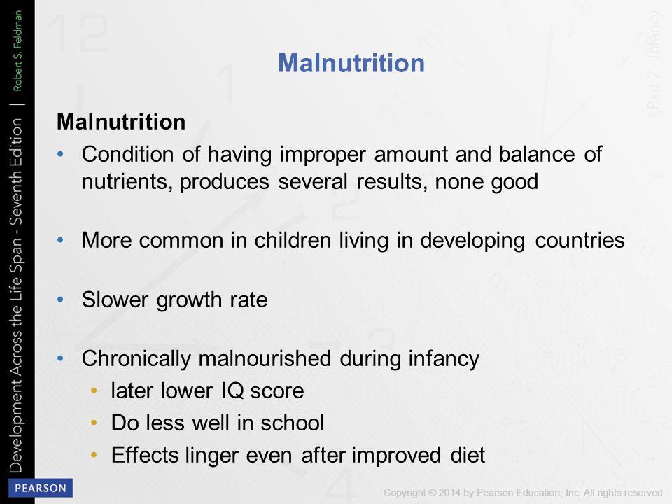 Malnutrition Malnutrition