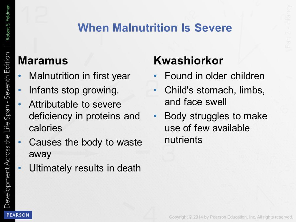 When Malnutrition Is Severe