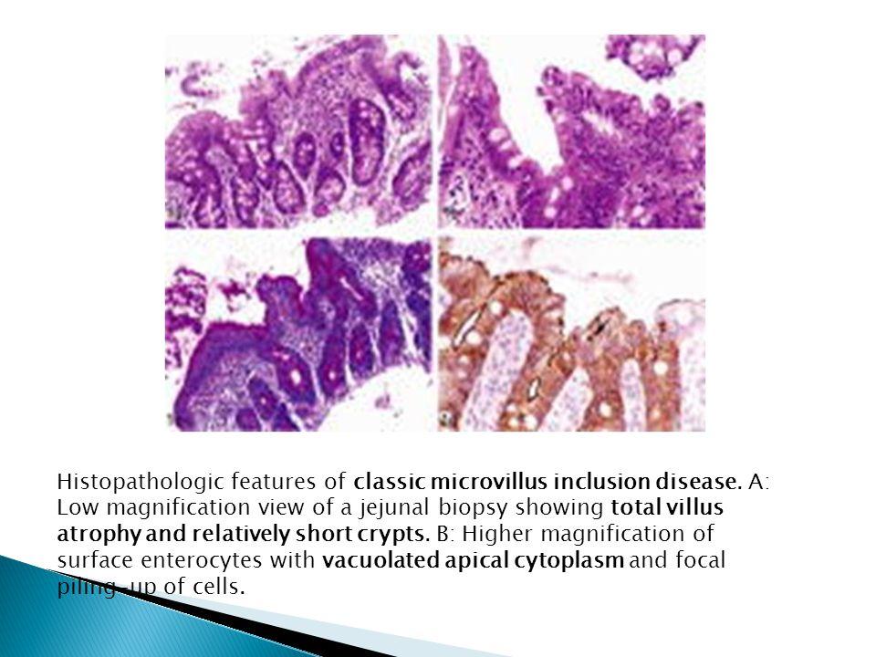 Histopathologic features of classic microvillus inclusion disease