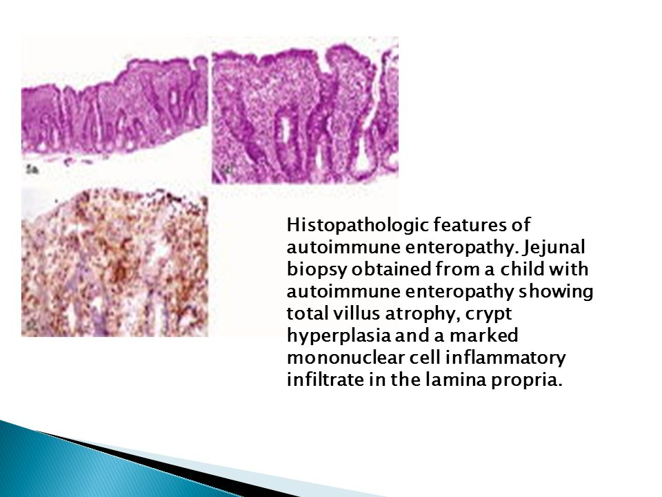 Histopathologic features of autoimmune enteropathy