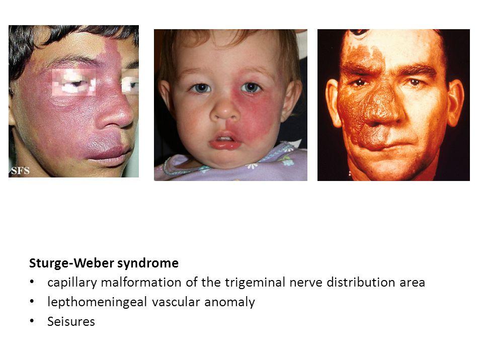 Sturge-Weber syndrome