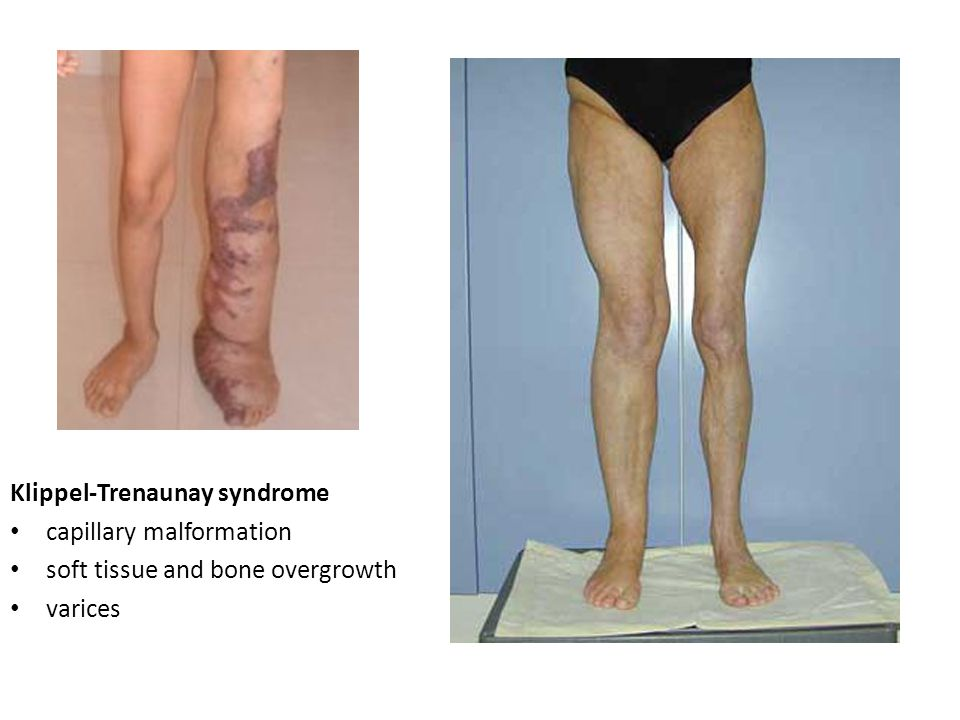 Klippel-Trenaunay syndrome