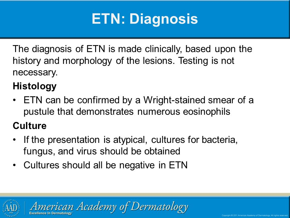 ETN: Diagnosis The diagnosis of ETN is made clinically, based upon the history and morphology of the lesions. Testing is not necessary.
