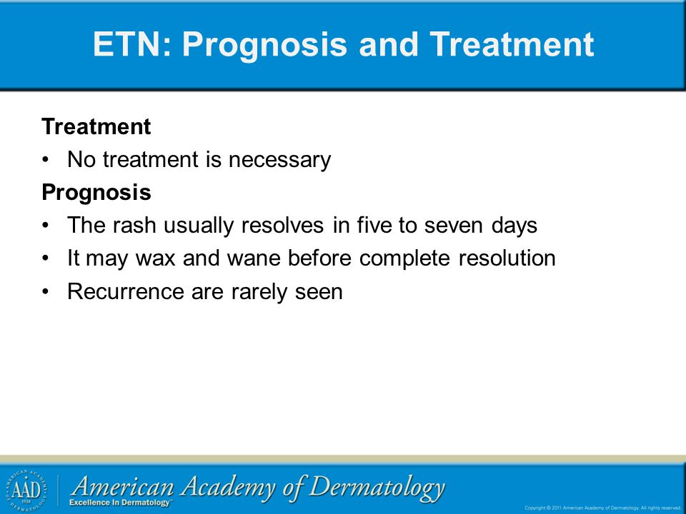 ETN: Prognosis and Treatment