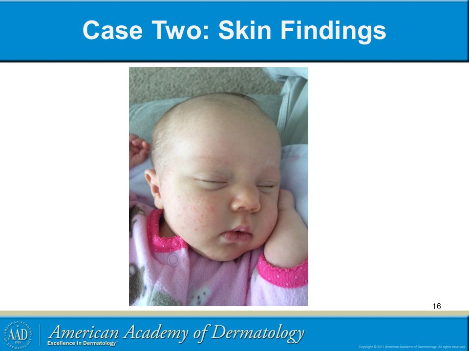 Case Two: Skin Findings