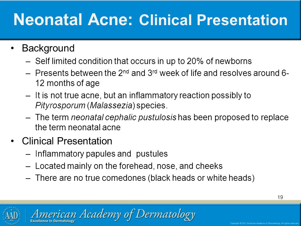 Neonatal Acne: Clinical Presentation