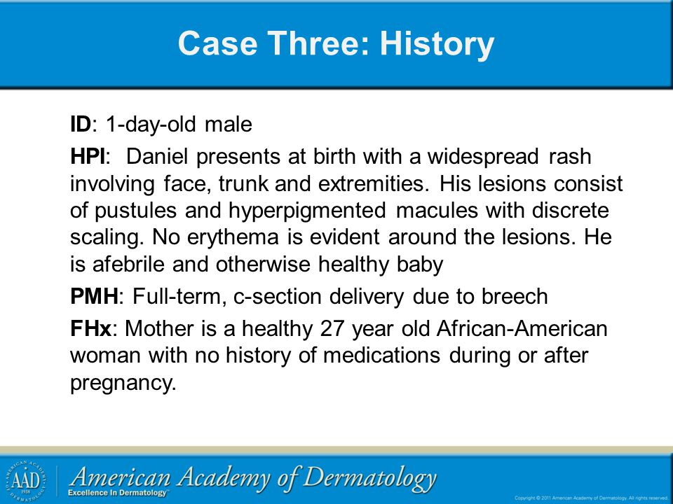 Case Three: History ID: 1-day-old male